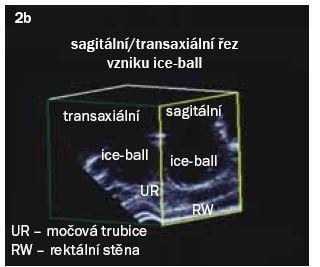 Obr. 2b. Monitorování tvorby a zvětšování ice-ball v reálném čase.