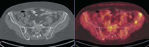 V levé lopatě kyčelní v LD CT obrazu evidentní osteolytická léze bez metabolického korelátu v PET obrazu, v pravé lopatě kyčelní naopak 2 drobná ložiska akumulace FDG bez jednoznačného korelátu v LD CT obrazu