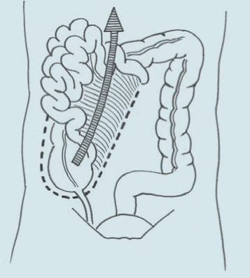 Odklopení colon a kliček střevních.