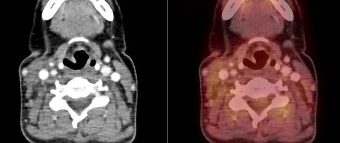 PET/CT v únoru roku 2012 (4 měsíce po totální tyroidektomii, 6 měsíců po ukončení systémové protinádorové terapie). Obrázek vztahující se ke kazuistice č. 2. V měkkých tkáních již bez průkazu patologického vychytávání radioaktivní glukózy.