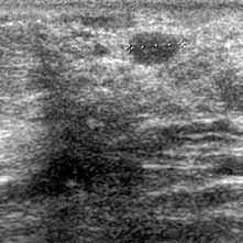 Nepravidelná nehomogenní area s mohutným akustickým stínem v pravé části obrazu. Vlevo oválné, poměrně dobře ohraničené ložisko – histologicky recidiva karcinomu.