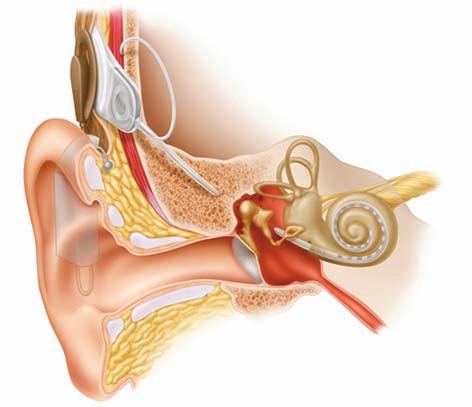 Ilustrační zobrazení umístění kochleárního implantátu a zvukového procesoru (reprodukce se svolením firmy Aima).