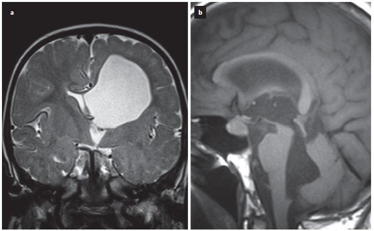 Ukázka dilatace komorového systému nad překážkou v případě jednokomorového hydrocefalus při uzávěru foramen monroi (a) nebo u čtyřkomorového hydrocefalu při obstrukci výtokové části IV. komory (b).