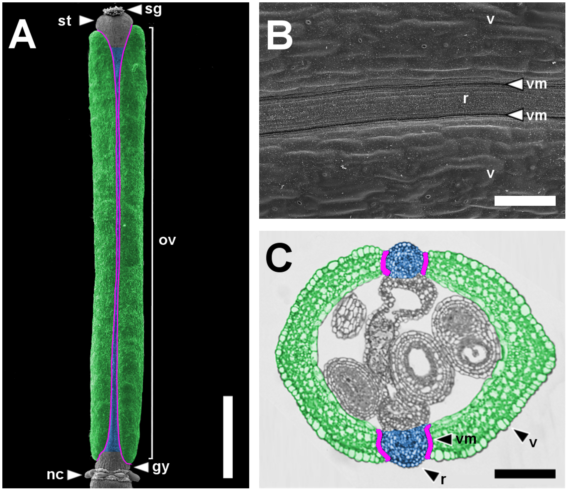 Main pattern elements along the mediolateral axis of the <i>Arabidopsis</i> wild-type fruit.