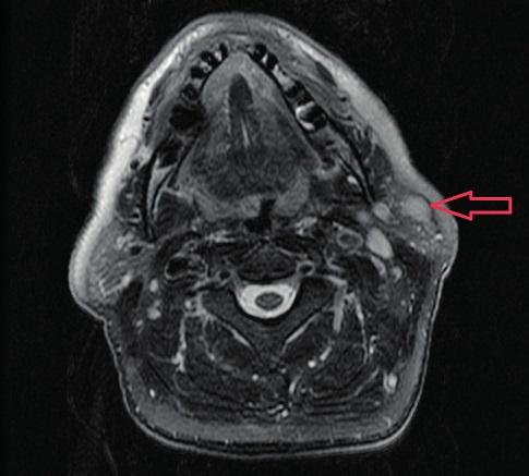 Zobrazení útvaru v L příušní slinné žláze v axiální rovině., červená šipka zobrazuje tumor.