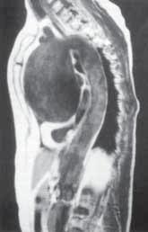 Aneuryzma ascendentní aorty zobrazené pomocí NMR.
