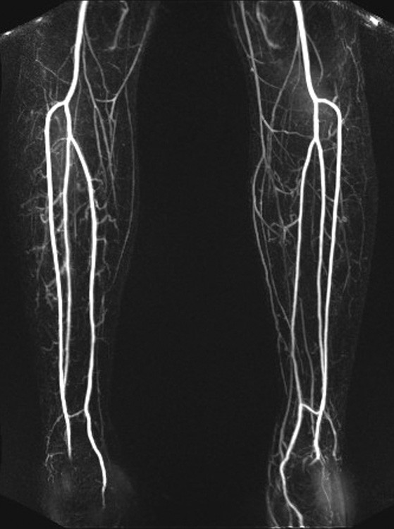 Obr. 1, 2, 3: MR angiografie končetinových tepen Fig. 1, 2, 3: MR angiography of lower limb arteries