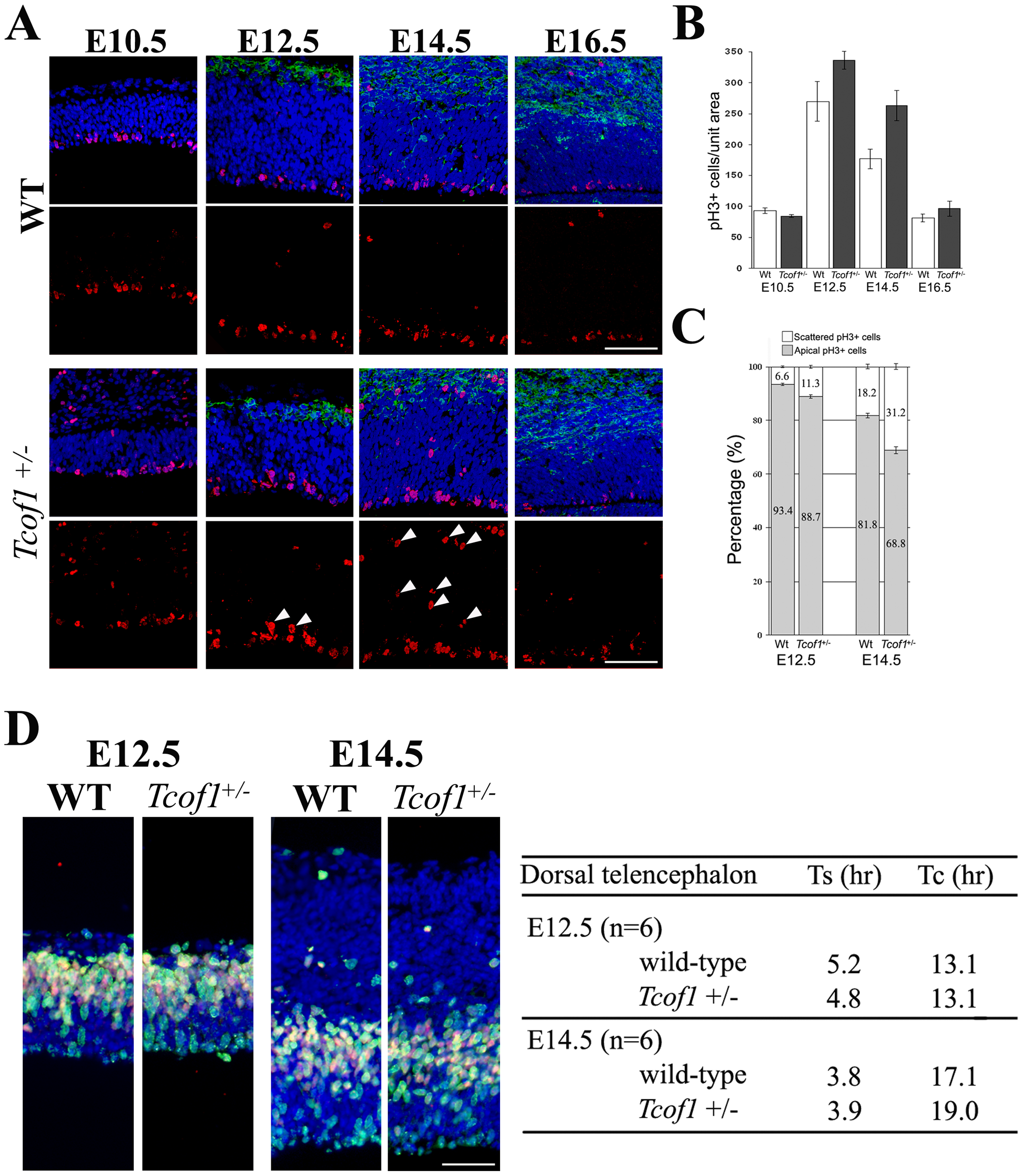 Neural progenitor cells in <i>Tcof1</i><sup>+/−</sup> embryos exhibit mitotic defects.