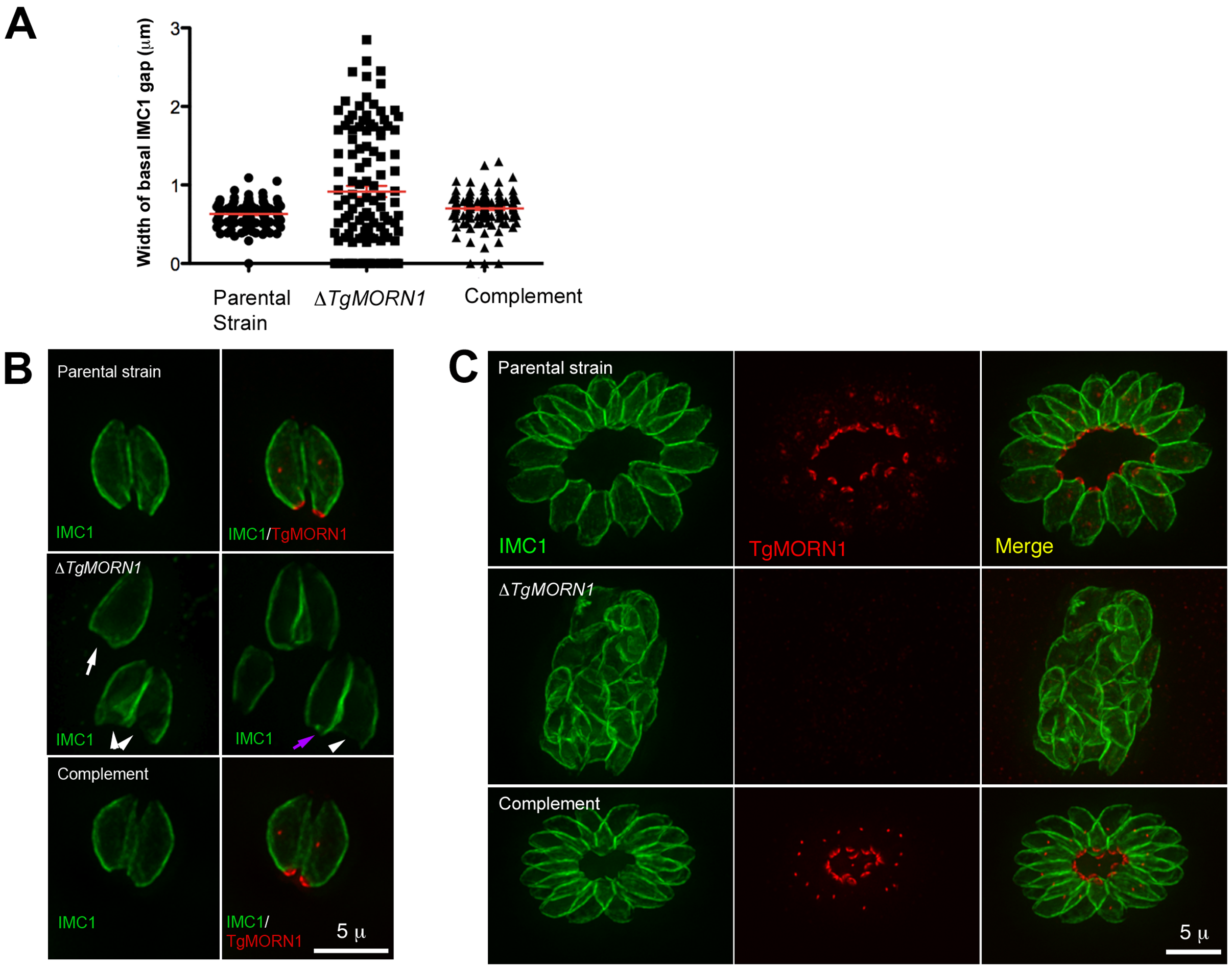 The loss of TgMORN1 affects the organization of the parasite posterior end.