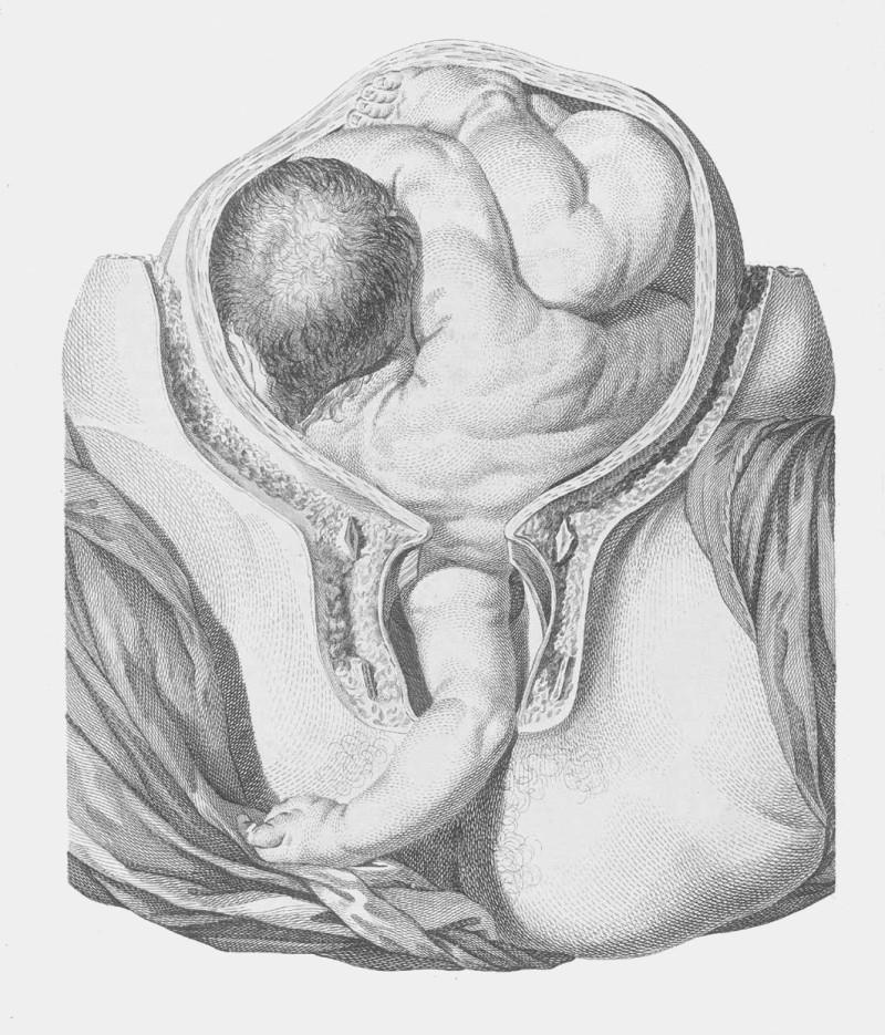 Komplikovaný porod