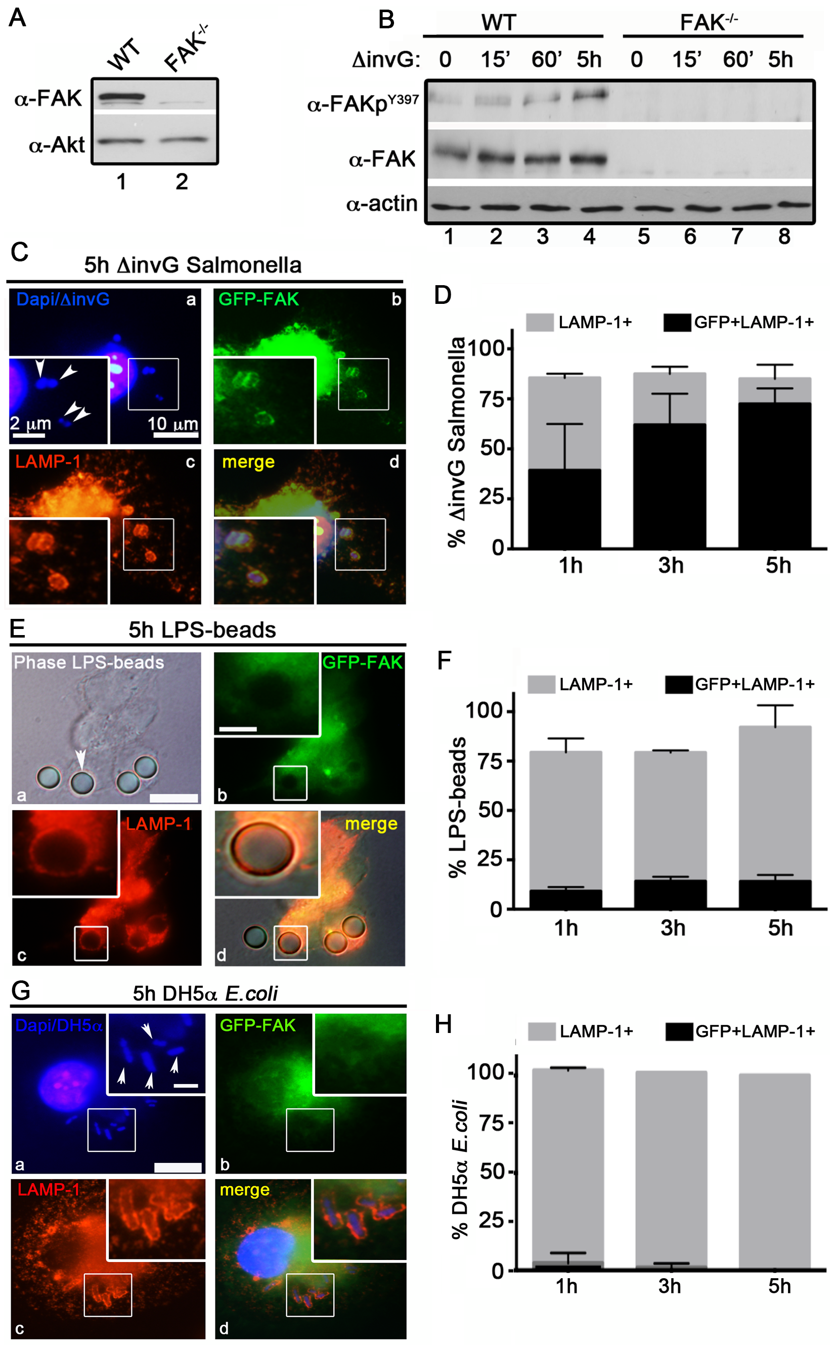 FAK is selectively recruited to LAMP-1-positive SCVs.