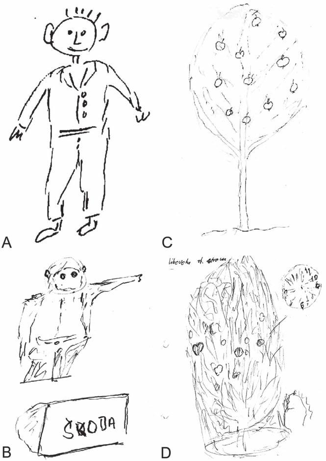 Kresby pacienta s patrnou progresí poruchy zrakově-prostorové představivosti a konstruktivní apraxie (viz též spontánně nakreslený obrázek hodin v pravém horním rohu obrázku 2D).