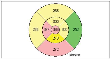 OCT snímek levého oka před léčbou (mapa)