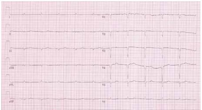 "Typický nález ""nízké voltáže"" a Q kmitů na EKG u pacienta s AL amyloidózou."