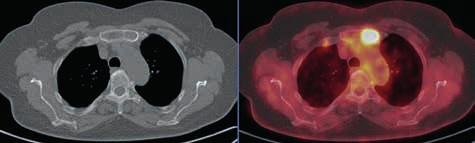 Osteolytické ložisko v levé polovině sterna vykazuje pozitivitu v PET obrazu