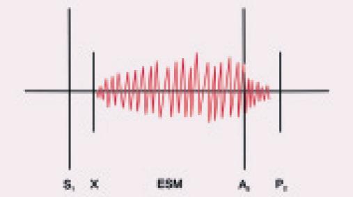 Auskultační nález u stenózy plicnice. Charakteristický je dlouhý ejekční systolický šelest (ESM) často zabírající aortální složku druhé ozvy (A2), nicméně končící před plicní komponentou druhé ozvy (P2). Může být slyšet ejekční klik (X), který má nižší intenzitu během inspiria.