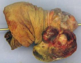 Amputát penisu – makroskopicky patrný exofytický tumor glandu přecházející na vnitřní list předkožky (foto R. Žalud) Fig. 1. Tumour of glans penis on removed part of penis (Photo R. Žalud)