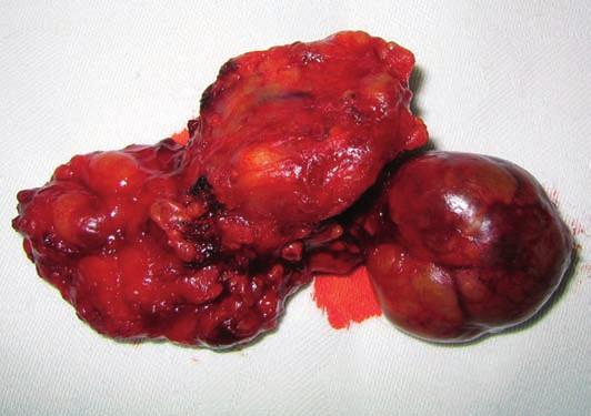 Operační preparát: dva nádorové uzly s částí povrchového listu gl. parotis