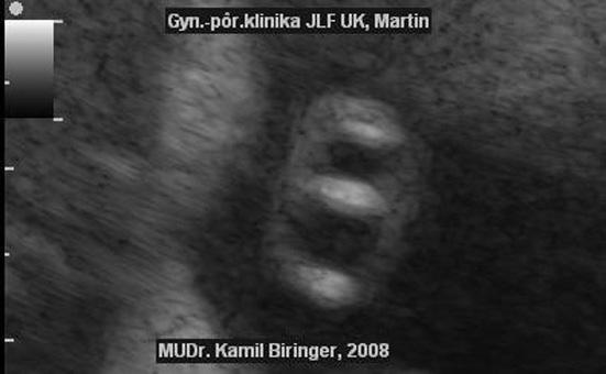 Priečny rez pupočníkom - chýbajúca umbilikálna artéria