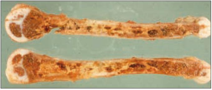 Kostní dřeň i destruované úseky kosti nahrazeny aglomeráty pěnitých buněk.