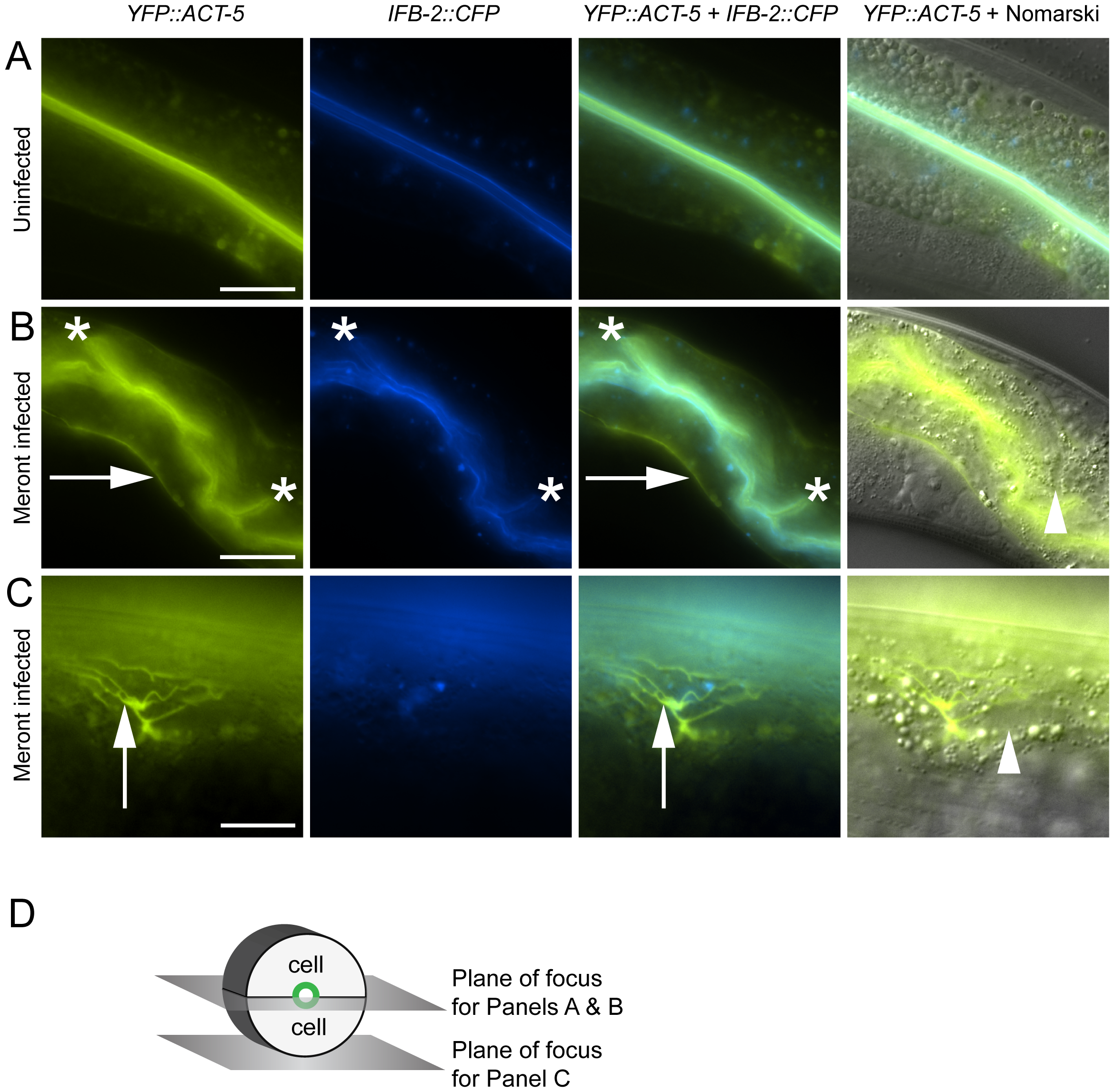 Host intestinal actin relocalizes basolaterally during <i>N. parisii</i> meront development.