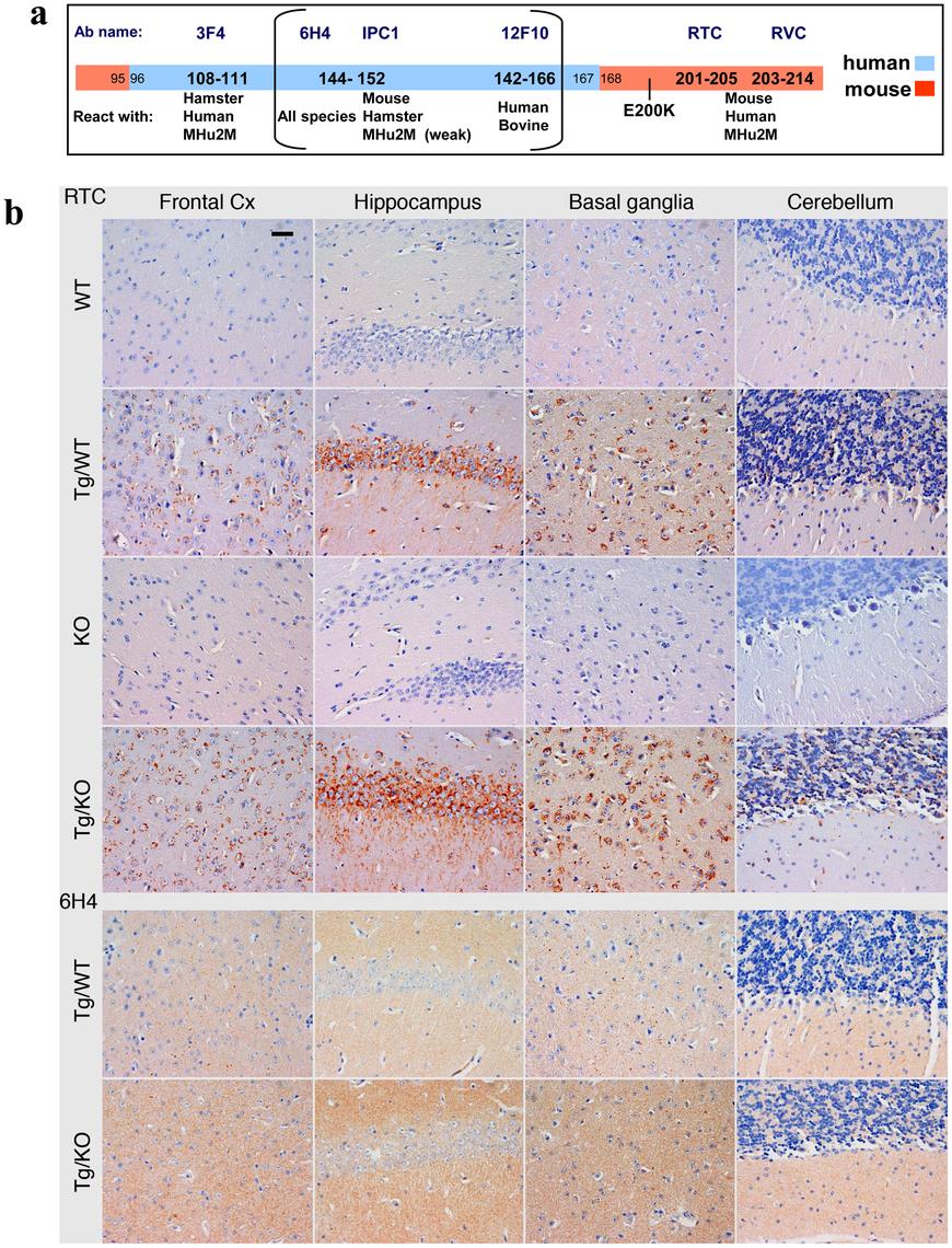 PrP immunoreactivity in the brains of TgMHu2ME199K mice.