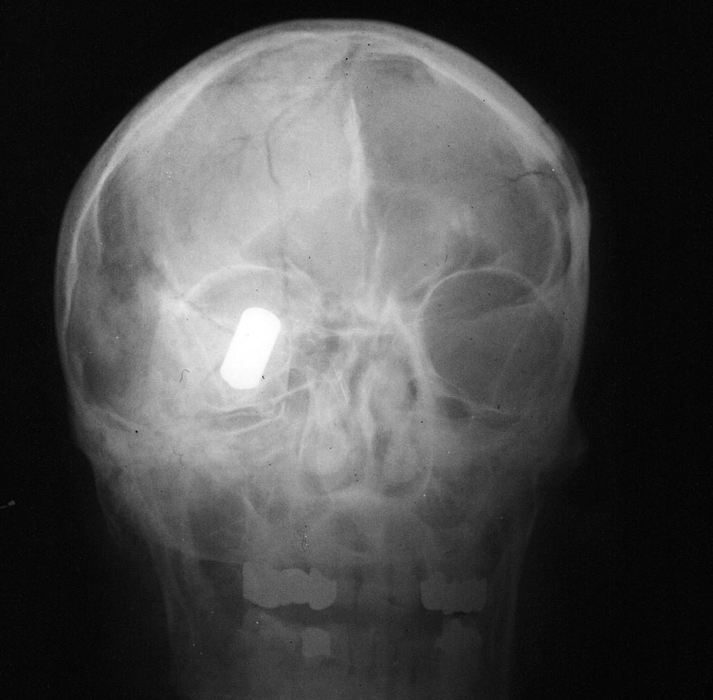 RTG lebky v předozadní projekci s kontrastní nedeformovanou střelou typu S-BALL Plastik (Sellier&Bellot©). Nešťastná náhoda při lovu divokých prasat. Vstřel byl lokalizován v oblasti levé čelní krajiny