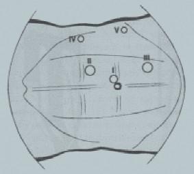 Transperitoneální laparoskopie v horním retroperitoneu. Uspořádání trokarů na pravé straně.