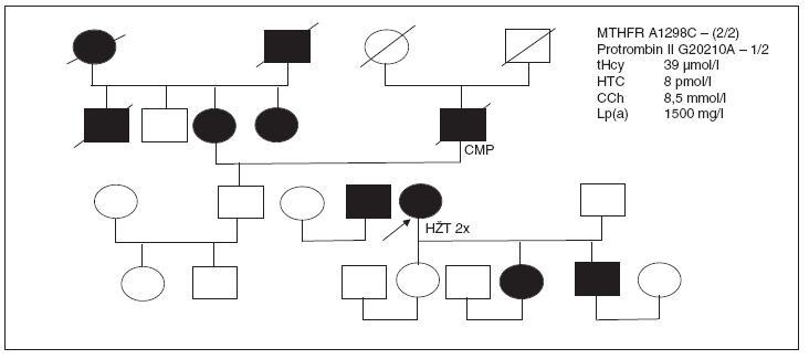 Rodokmen pacientky s opakovanou flebotrombózou z rizikové rodiny, nositelky mutace pro protrombin II, která dlouhodobě užívala KHA.