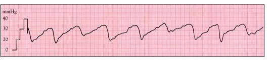 Těžká trikuspidální regurgitace je spojena se zvýšením tlaku v pravé síni s případnou ventrikularizací tlakového záznamu v PS.
