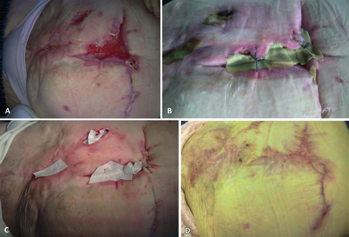 Komplikovaná postoperační rána léčená s použitím Hcel HT: (a) po vyčištění, (b) po dvou dnech před výměnou krytí, (c) po dvou dnech nové krytí, (d) vyhojený defekt
