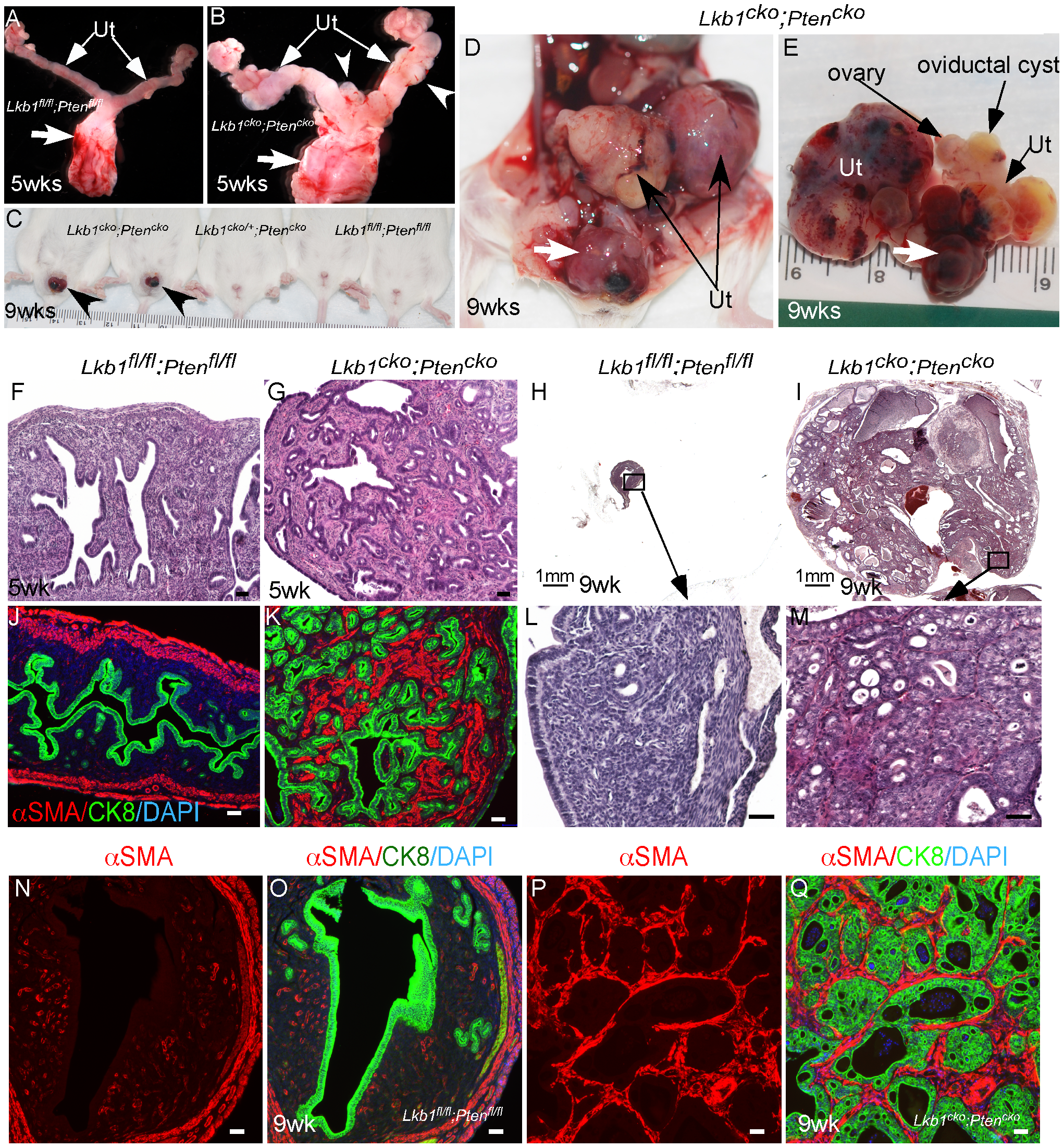 Formation of highly aggressive endometrial adenocarcinoma in <i>Lkb1<sup>cko</sup>;Pten<sup>cko</sup></i> mice.
