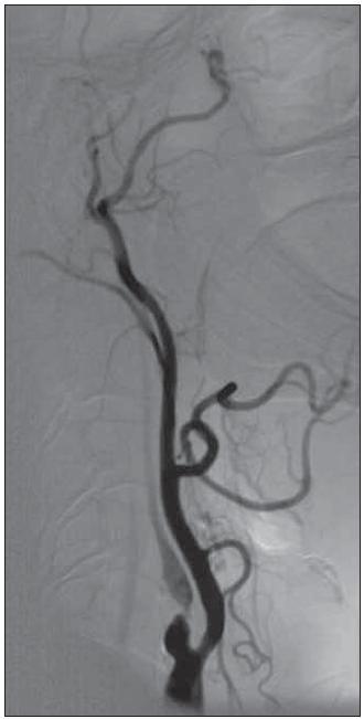 Obr. 1a. Karotická angiografie 66letého muže s pozvolným narůstáním neurologické symptomatologie (NIHSS 7 v době angiografie).  Provedené volumové perfuzní CT prokázalo snížení průtoku a jeho zpoždění ve dvou třetinách pravé hemisféry, přičemž snížení objemu krve svědčící pro nekrózu bylo v relativně malém rozsahu zhruba 1,5 cm. Angiografie prokazuje těsnou stenózu se zpomaleným tokem ve vnitřní karotické tepně. Rozhodnuto o provedení karotické angioplastiky s podáním 3 000 j. heparinu a 500 mg acetylsalicylové kyseliny intravenózně 6 hod od začátku symptomů.