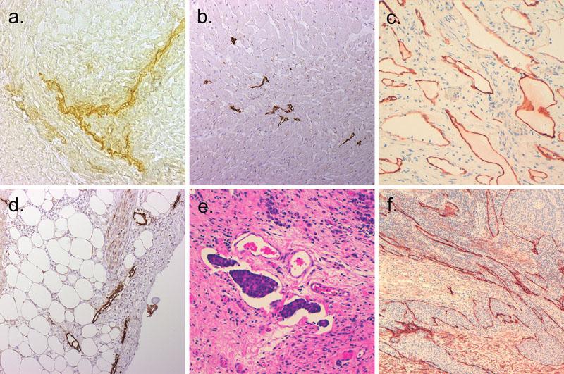 Lymfatické cévy v různých normálních a patologicky změněných tkáních.  a. Lymfatická kapilára v myším jazyku detekovaná histochemicky ceriovou reakcí na 5'nukleotidázu (400krát); b. Lymfatické cévy v normálním myokardu lidského srdce; imunohistochemická reakce s protilátkou D2-40 (100krát); c. Jejunální lymfangiom vykazuje podoplanin imunopozitivitu v lymfatických cévách (200krát); d. Zvýšené množství lymfatik v perikardu postiženém perikarditidou; imunohistochemická reakce s protilátkou D2-40 (100krát); e. Šíření nádorových buněk adenokarcinomu žaludku lymfatickými cévami (HE, 200krát); f. Intratumorální lymfatické cévy v adenokarcinomu tlustého střeva; imunohistochemická reakce s protilátkou proti podoplaninu (100krát)