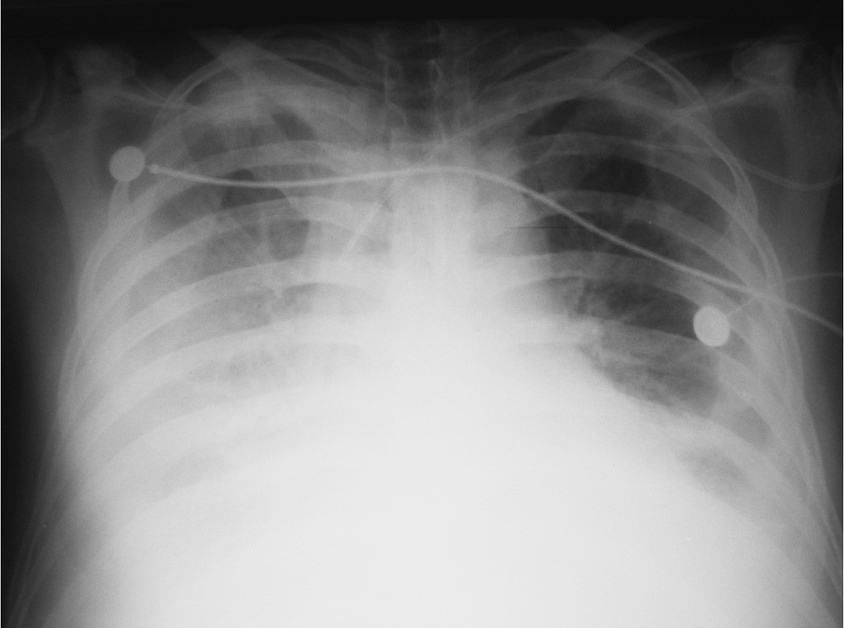 RTG plic – oboustranný fluidotorax Fig. 2. Pulmonary x-ray – bilateral fluidothorax