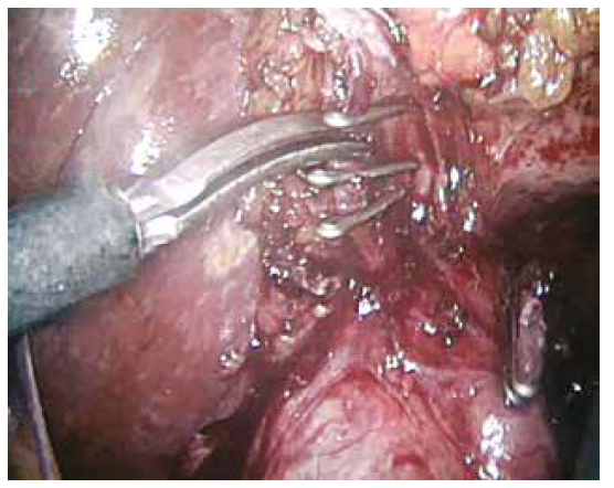 Ligace a střižení a. cystica, ductus cysticus ligován<br> Fig. 4: Clipping and cutting of the cystic artery, cystic duct clipped