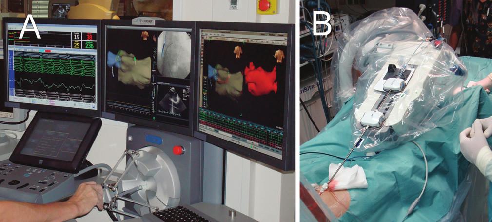 Systém pro robotickou ablaci (Hansen-Medical) A. Ovládací panel robotického systému, který je umístěn mimo katetrizační sál. B. Rameno robotického systému, které řídí pomocí zavaděčů pohyb ablačního katétru uvnitř srdce pacienta.