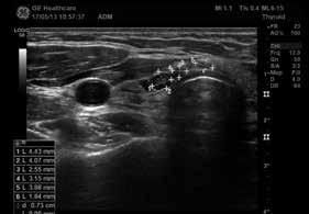 Nehomogenní pretracheální lymfatické uzly kaudálně od pravého laloku štítné žlázy (zdroj: archiv autora)