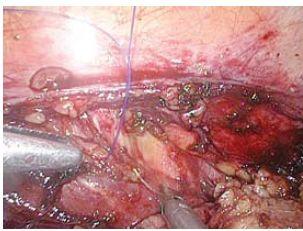 Jehla zapíchnutá levým jehelcem do m. trasversusu abdominis pod n. subcostalis Th 12 je vytahována pravým jehelcem Fig. 3. Needle digged in m. transversus abdominis under n. subcostalis Th 12