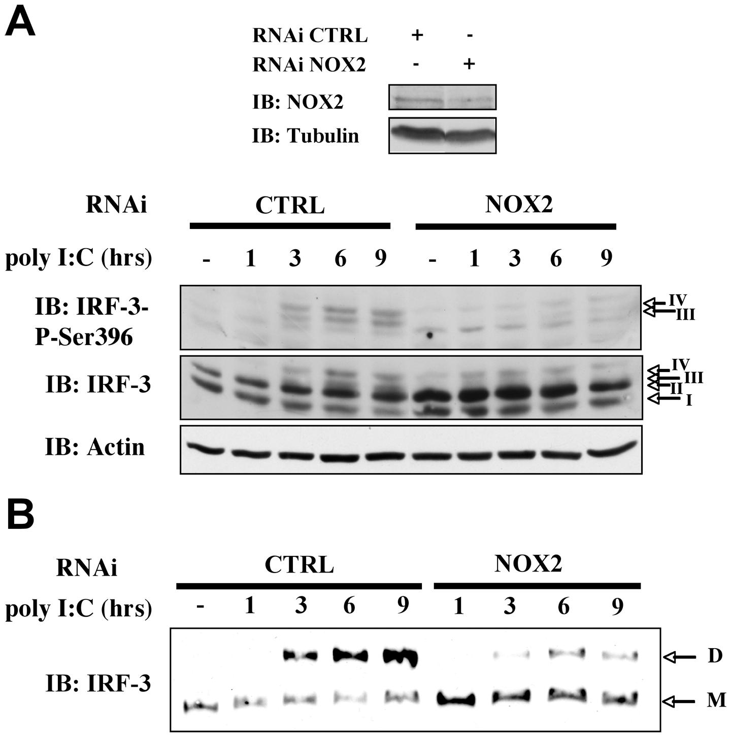 NOX2 depletion inhibits poly I:C-induced IRF-3 phosphorylation and dimerization.