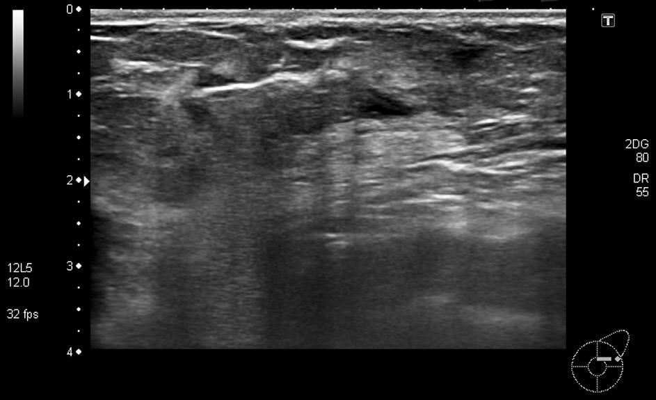 Obr. 4c: Biopsie ložiska levého prsu – provedena cílená biopsie v místním znecitlivění ložiska v HZQ, ložisko s výraznějším prokrvením při periferii (patrná je punkční jehla pronikající do ložiska) Fig. 4c: Biopsy from a left breast focus – targeted biopsy from a focus in the upper external quadrant, performed under local anaesthesia; focus with more significant blood supply in the periphery (puncture needle accessing the focus is showing on the picture)