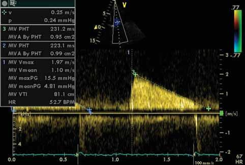 Doplerovská echokardiografie u mitrální stenózy. Výpočet středního gradientu (meanPG) a MVA dle PHT.