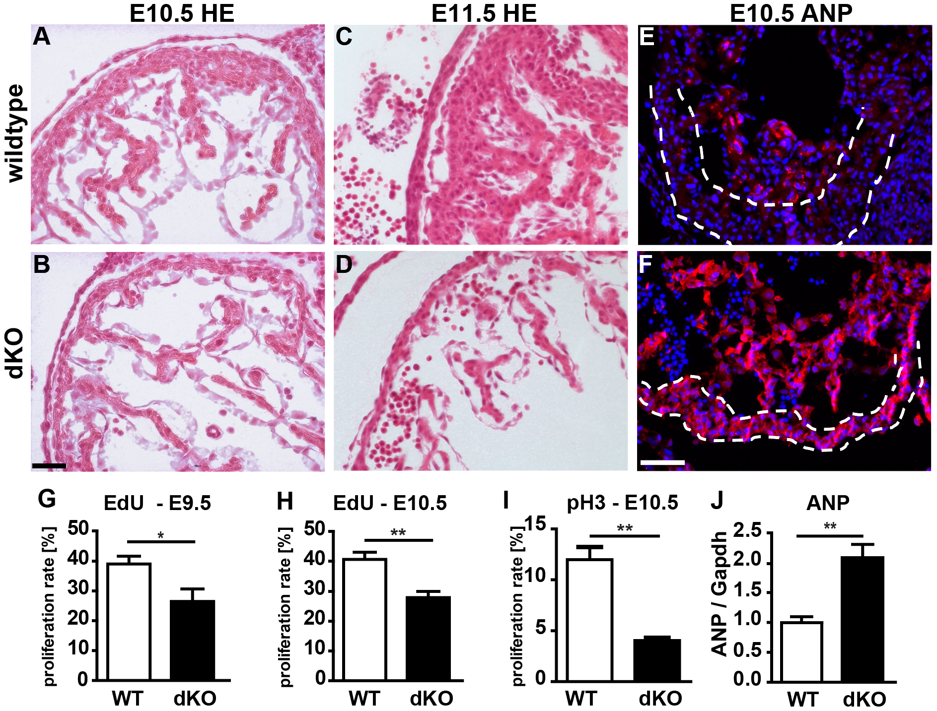 Loss of <i>miR-1/133a</i> leads to aberrant heart development and causes embryonic lethality.