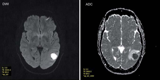 Zobrazení mozkového abscesu v difuzně váženém obraze (DWI) a zdánlivém koeficientu difuze (ADC) – vyšetření v poli 1,5T. Fig. 2. Brain abscess in diffusion-weighted MRI (DVI) and apparent diffusion coefficient (ADC) – a 1.5 T examination.