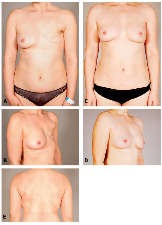 Patient 6: A 43-years-old women 48 months after mastectomy and adjuvant radiotherapy. She refused to have a scar on her abdomen. She underwent latissimus dorsi breast reconstruction associated with fat grafting into the pectoralis (40 ml) and latissimus dorsi (50ml) muscles, and with abdominal advancement flap. Two additional sessions of lipomodelling (205 and 130 ml) were performed to increase breast volume. One resulting horizontal scar on the breast and dorsal scar hidden in the bra. Preoperative and postoperative frontal, oblique and dorsal views, follow-up 22 months