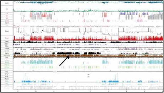 PSG záznam diagnostickej noci pacienta 2. Šipka upozorňuje na periodické pohyby končatín. Legenda v obr. 2.