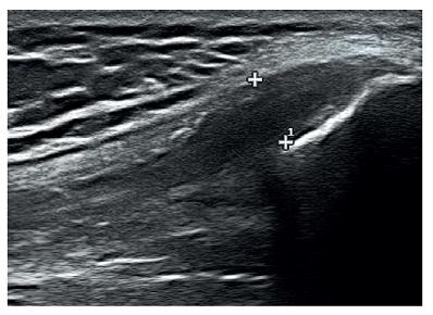 Obr. 2e Hypoechogenní a rozšířená šlacha quadricepsu.