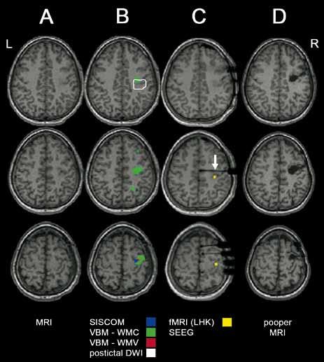 Kombinace pokročilých neurozobrazovacích vyšetření u MR-negativního pacienta. A) předoperační MR. B) superpozice výsledků pokročilých zobrazovacích metodik (SISCO M, VBM-WMC – abnormní koncentrace bílé hmoty, VBM-WMV – abnormní objem bílé hmoty, postiktální DWI). C) MR s intracerebrálními elektrodami (kontakt hluboké elektrody s počátkem iktální EEG aktivity označen šipkou) a výsledek funkční MR s aktivací při motorickém úkolu pro LHK. D) pooperační MR (pacient 13).