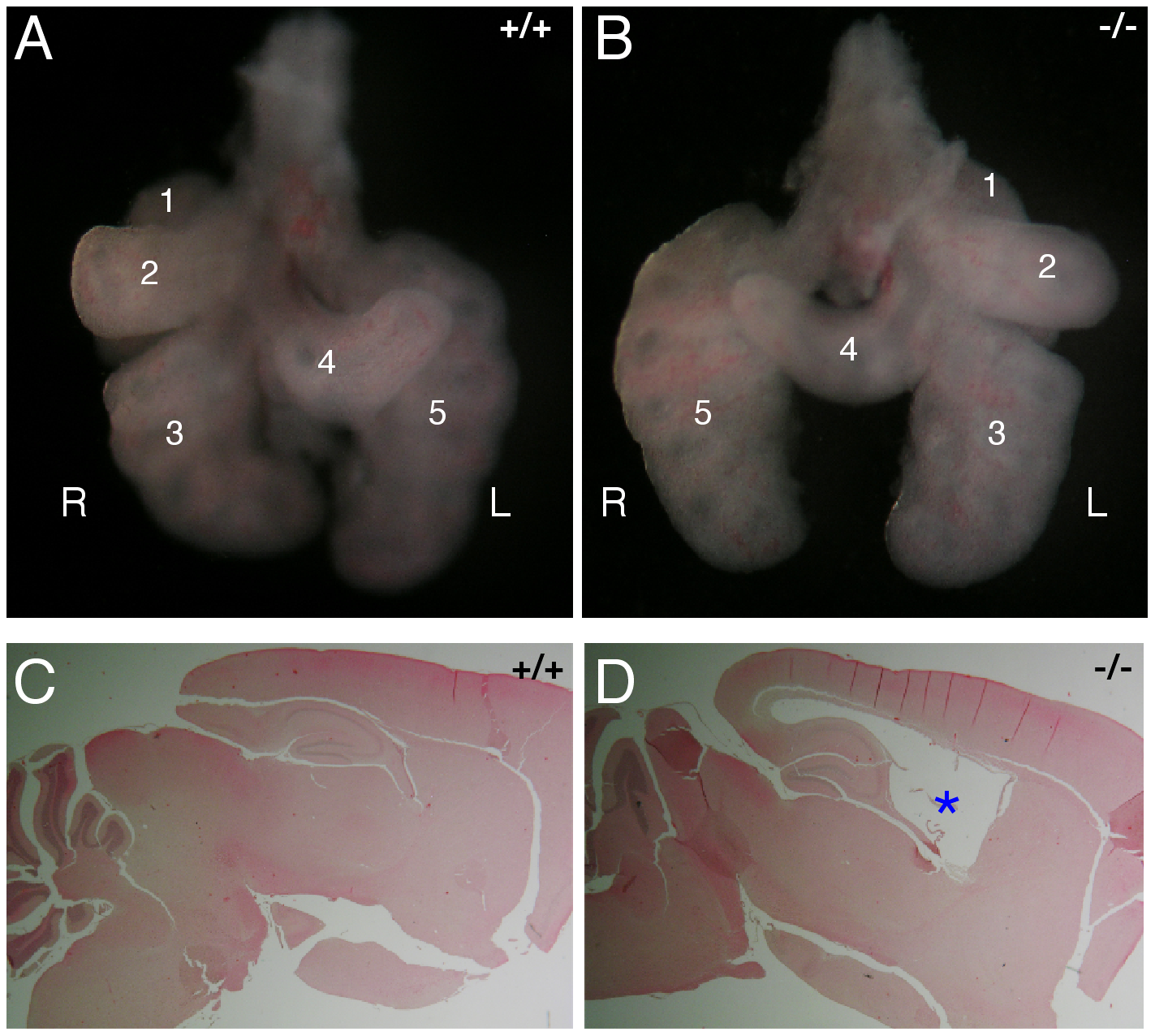 Abnormal left–right patterning and hydrocephalus in <i>Mns1</i>-deficient mice.