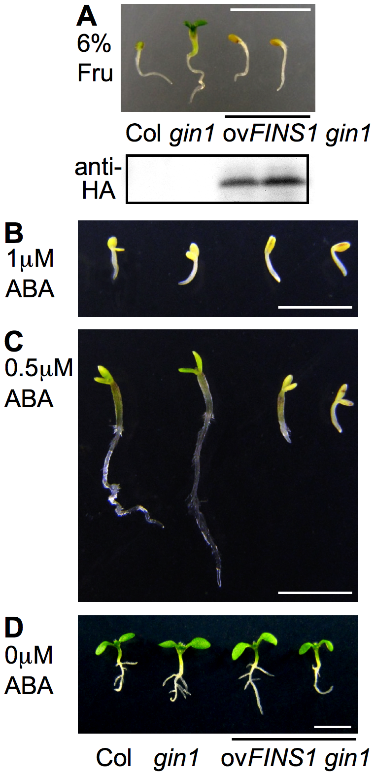 FINS1 in fructose signaling acts downstream of ABA signaling.